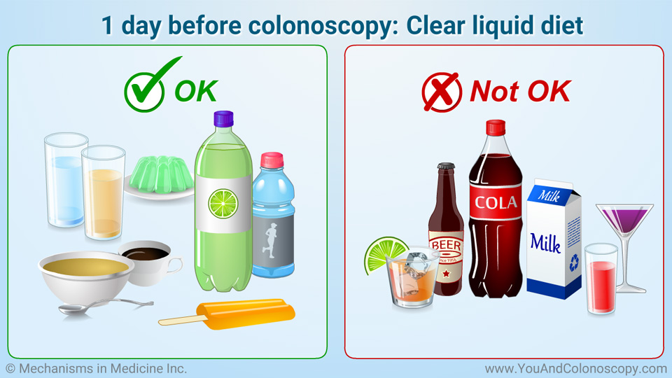 Diet Before Bowel Prep Colonoscopy | All Articles about Ketogenic Diet