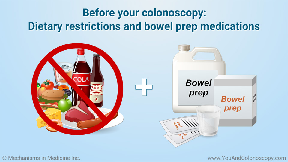 Food You Can Eat During Colonoscopy Prep