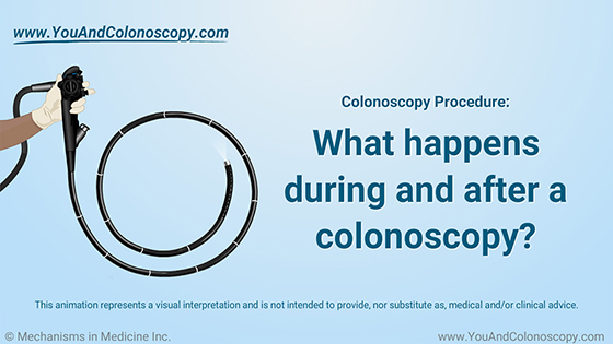 During and After Colonoscopy