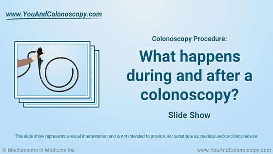 Slide Show - What happens during and after a colonoscopy?